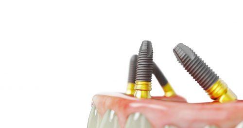 Nachsorge und Pflege von Zahnimplantaten: Wie geht es nach der Implantation weiter?