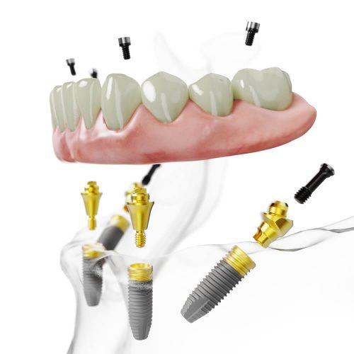 Feste dritte Zähne an einem Tag im Unterkiefer aus dem All-on-4® Excellence Center