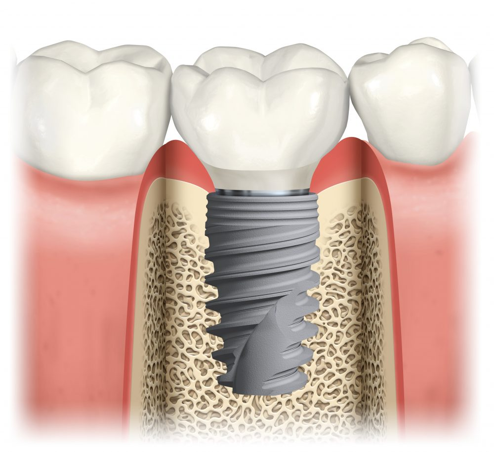 Behandlungsablauf Zahnimplantat: Vollkeramikkrone auf Titanschraube im Unterkiefer
