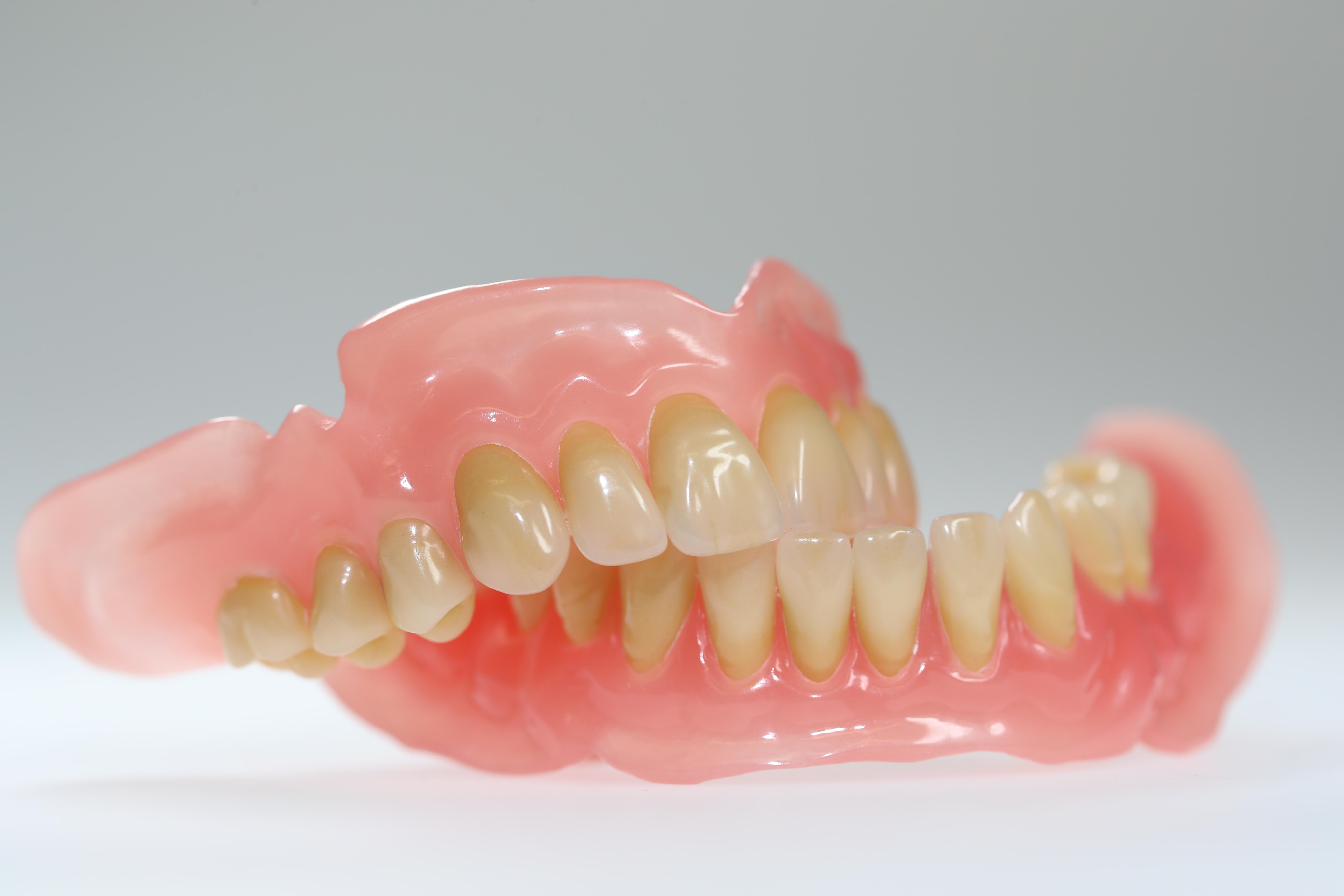 Rausnehmen zahnprothese IMEX® Zahnersatz