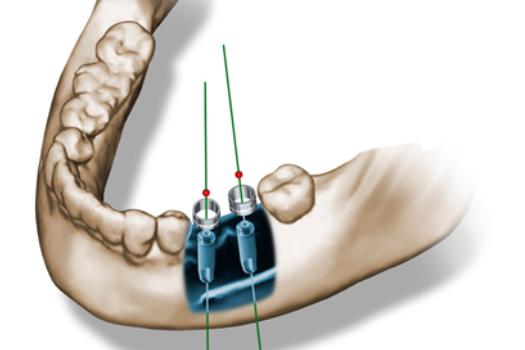 Minimalinvasive Behandlung
