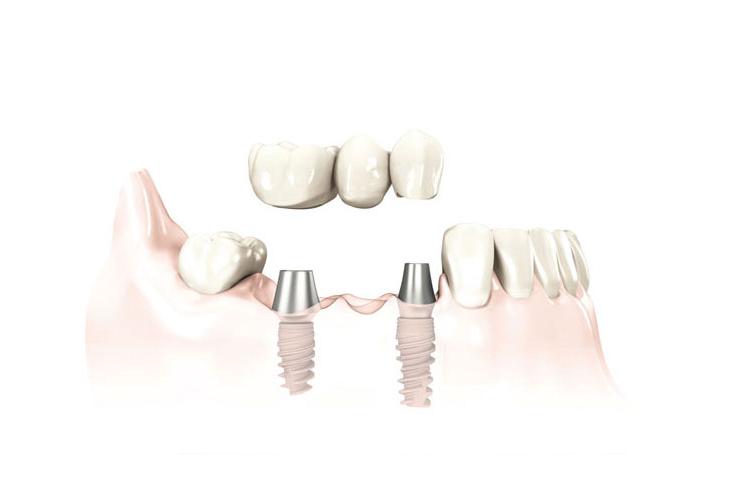 implant24.com - Zahnersatz