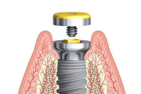 Die Einhaltung von Nachsorge-Terminen beim Zahnarzt ist dringend angeraten, um professionelle Vorsorge zu treffen und das hochwertige Implantat langfristig zu schützen.